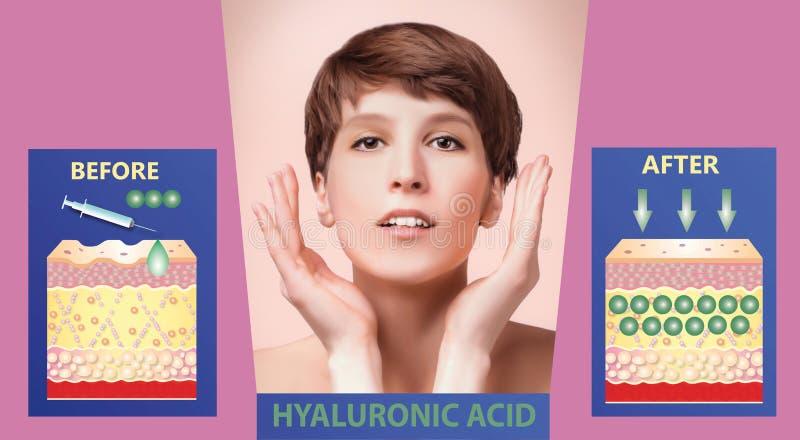 Hyaluronic кислота продукты кож-заботы подмолаживание кожи стоковые изображения rf