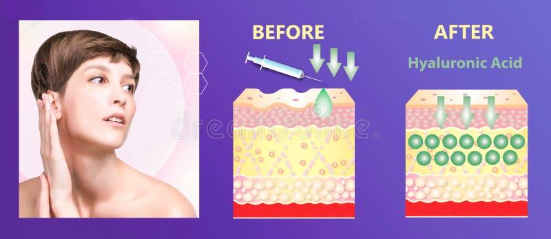 Hyaluronic zuur huid-zorg producten Huidverjonging stock foto