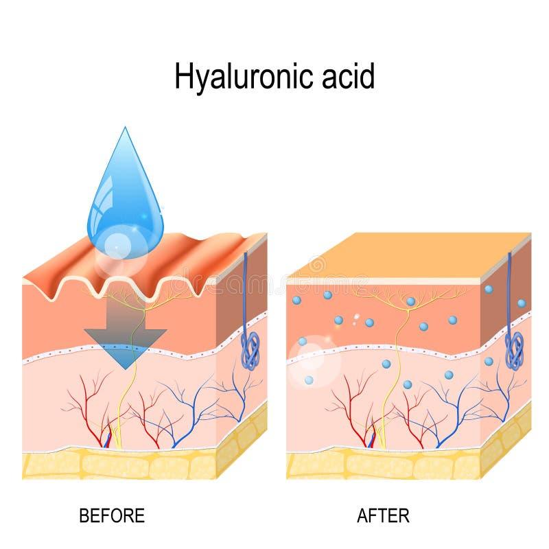 Hyaluronic zuur huidverjonging met hulp van hyaluronic zuur vector illustratie