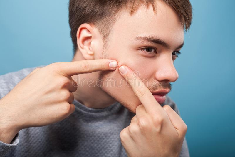 Hygiene and skin problems. Portrait of young brunette man squeezing pimple on face. isolated on blue background stock photo
