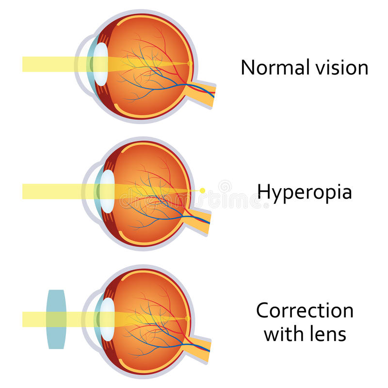 Hyperopia corrected by a plus lens. Hyperopia and Hyperopia corrected by a plus lens. Eye vision disorder royalty free illustration