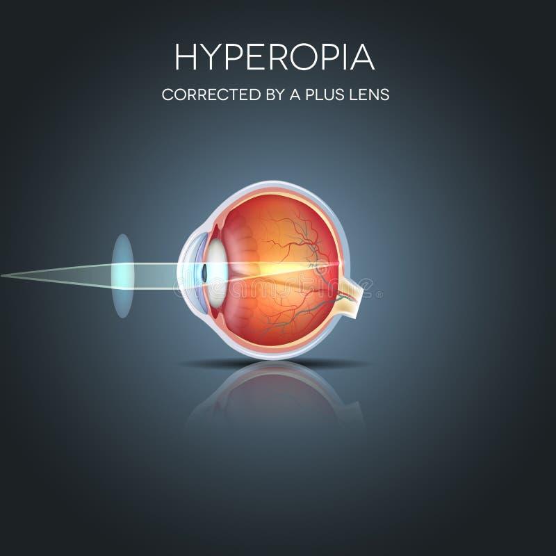 Hyperopia corregido stock de ilustración