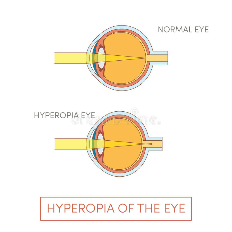 Hyperopia of the eye vector illustration