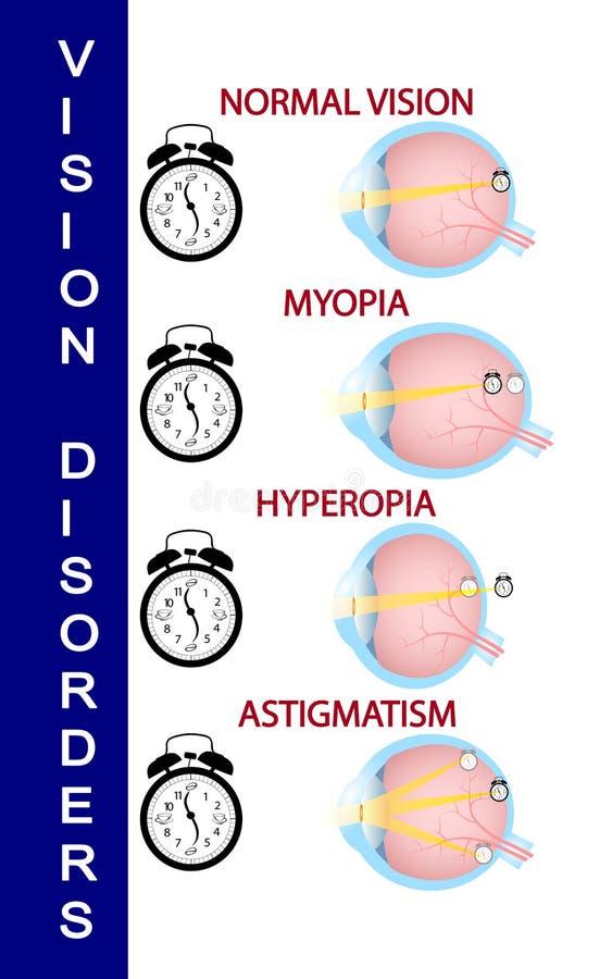 hyperopia plusz 5