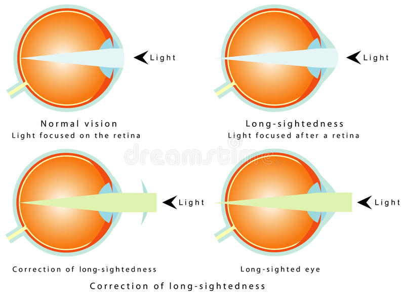 Hyperopia. Normal vision, light focused on the retina. Long-sightedness, light focused after a retina. Correction of long-sightedness. Long - sighted eye vector illustration