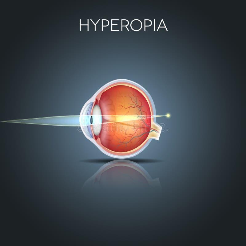 Hyperopia, ojo de largo visto stock de ilustración