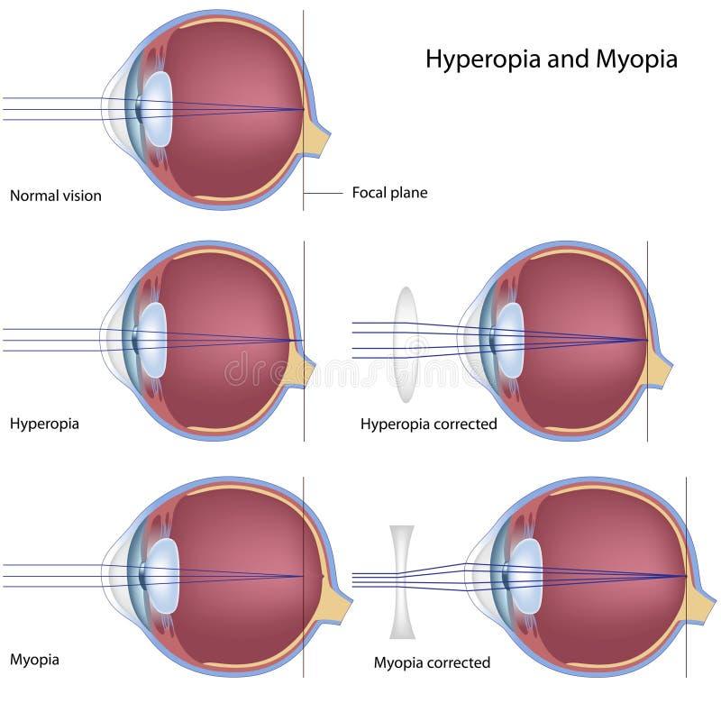hyperopiamyopia royaltyfri illustrationer