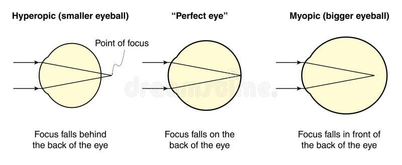 Hyperopic en bijziende ogen royalty-vrije illustratie