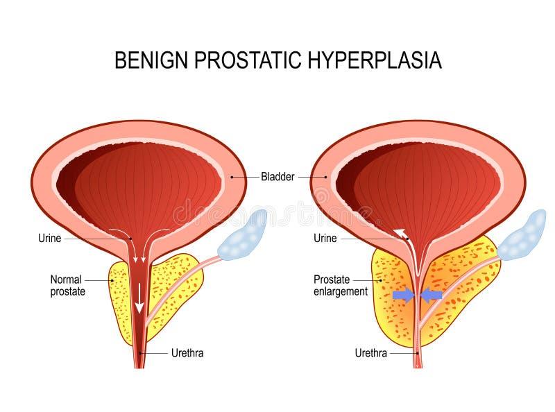 Hyperplasia prostatique bénin BPH élargissement de prostate illustration de vecteur