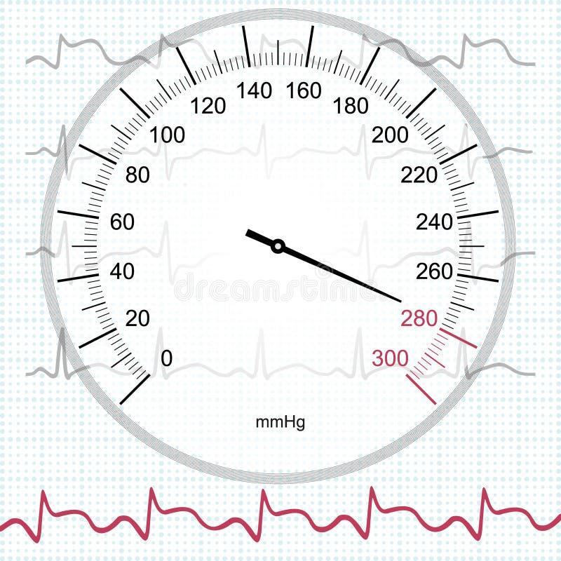 Hypertensie en myocardiaal infarct royalty-vrije illustratie