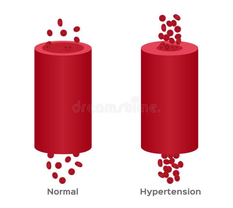 Hypertensie, hoge bloeddruk/menselijke anatomie stock illustratie
