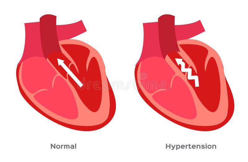 Hypertensie, hoge bloeddruk/menselijke anatomie royalty-vrije illustratie