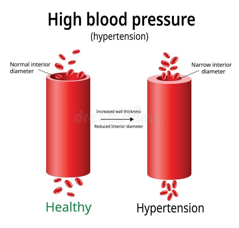 Hypertensie, hoge bloeddrukvector, royalty-vrije illustratie