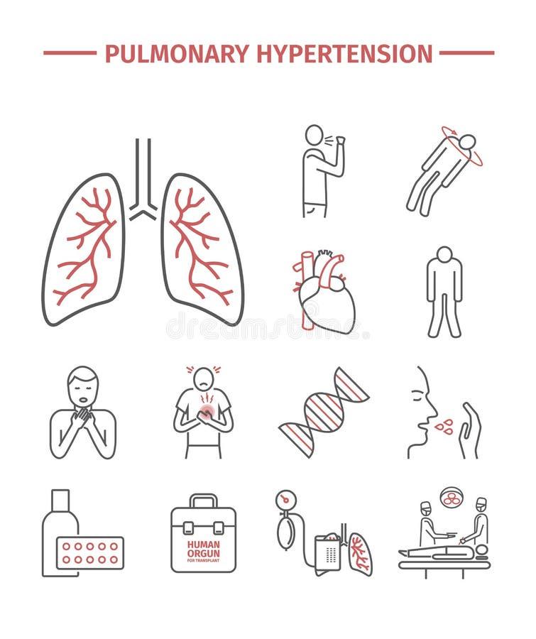 Hypertension pulmonaire illustration de vecteur..