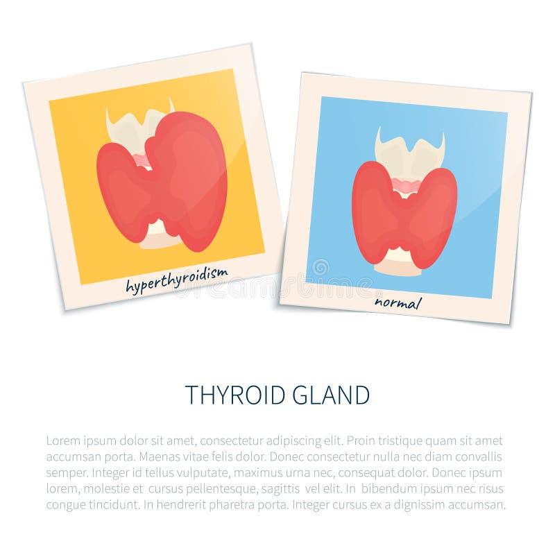 Hyperthyreose und gesunde Schilddrüse lizenzfreie abbildung