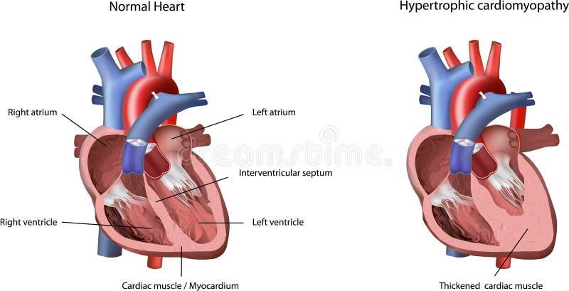 hypertrophic problem för cardiomyopathyhjärta royaltyfri foto