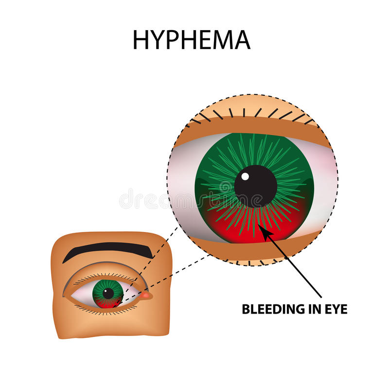 Hyphema. Anterior eye hemorrhage. The structure of the eye. Infographics. Vector illustration on isolated background vector illustration