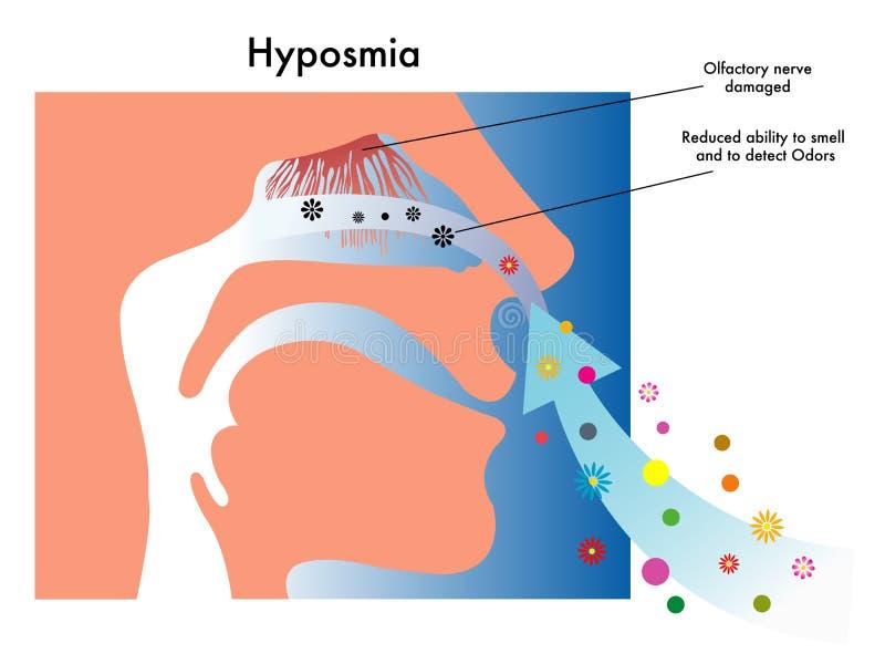 Hyposmia royalty-vrije illustratie