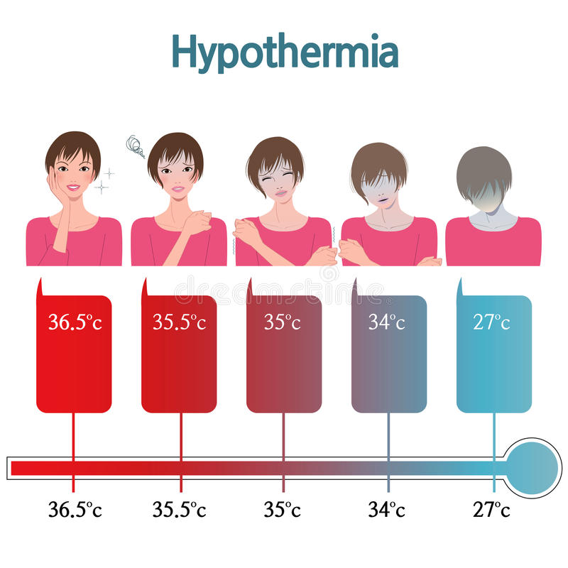 hypothermie stock abbildung