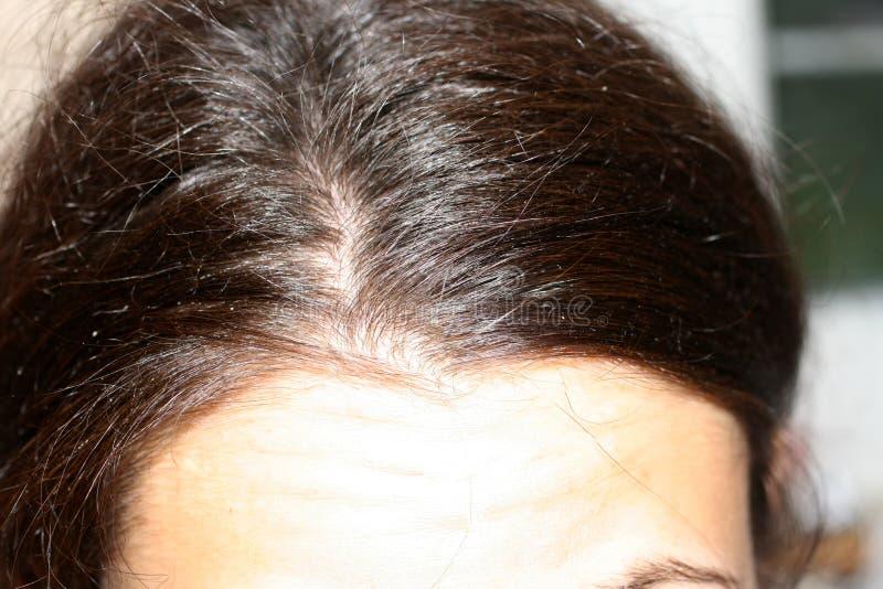 I capelli della curva hanno separato sulla testa dandruff fotografia stock libera da diritti