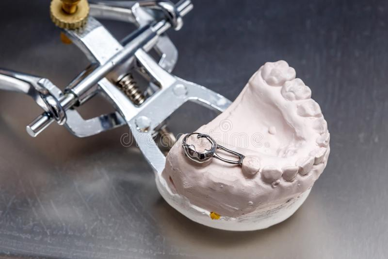 I denti dentari grigi della protesi modellano, argilla che le gomme umane modellano fotografia stock libera da diritti