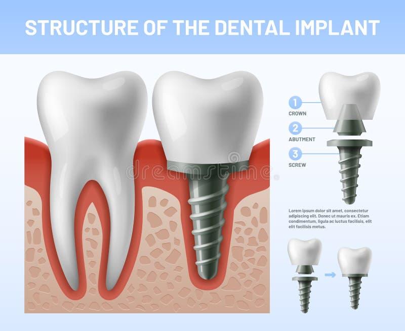 I denti dentari impiantano Appoggi della corona di procedura o del dente di impianto Illustrazione di vettore di sanità illustrazione di stock