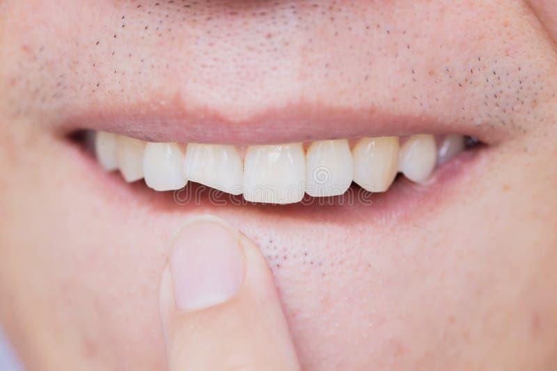 I denti tagliati maschii hanno danneggiato il dente anteriore incrinato immagine stock libera da diritti