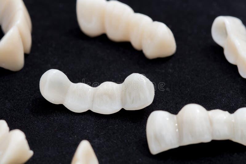 I ponti dentari dello zirconio o ceramici del dente sul nero scuro sorgono fotografia stock
