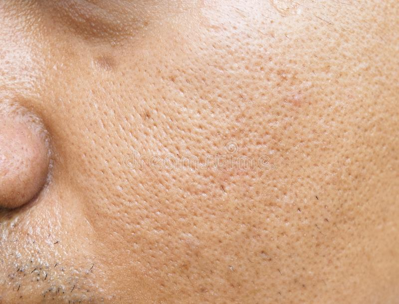 I pori ed oleosi sulla giovane pelle asiatica di superficie del fronte dell'uomo non non ciao a lungo fotografia stock