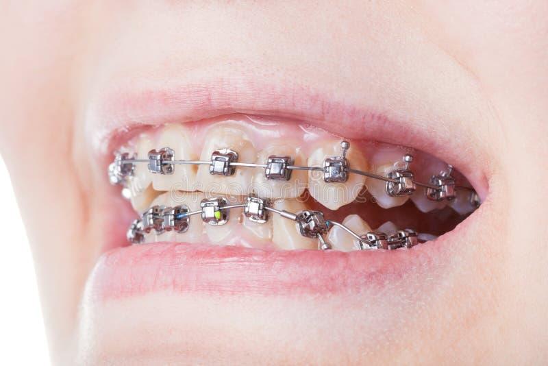 I sostegni d'acciaio dentari sui denti si chiudono su immagine stock