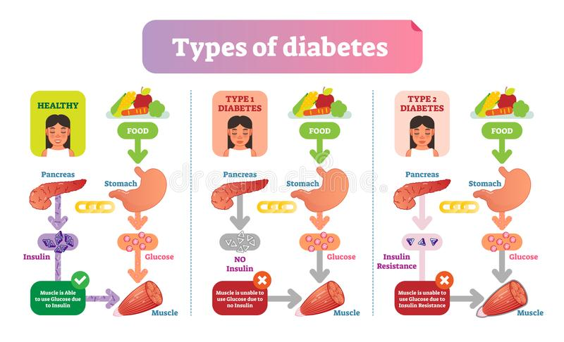 I tipi di illustrazioni mediche semplici di vettore del diabete progettano Diagramma di informazioni di sanità royalty illustrazione gratis