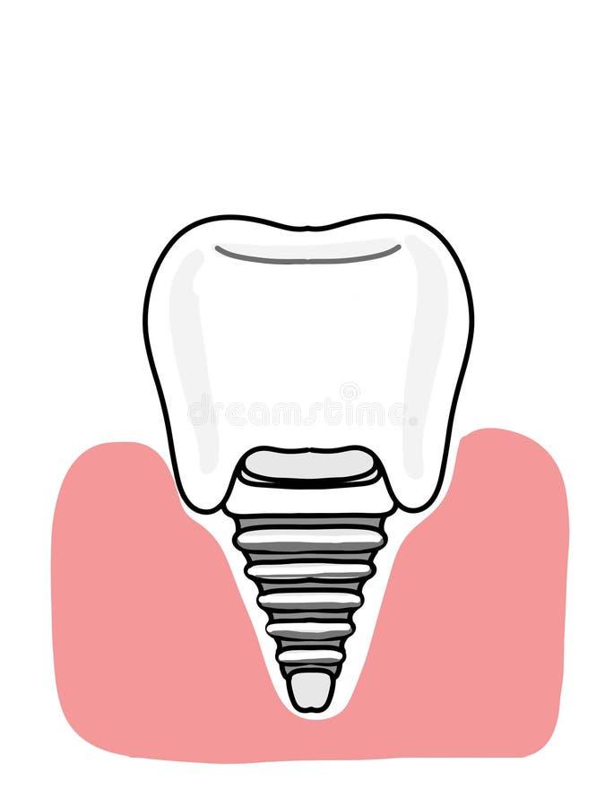 icône de bande dessinée d'illustration d'implant dentaire et couleurs blanches gingivales illustration libre de droits