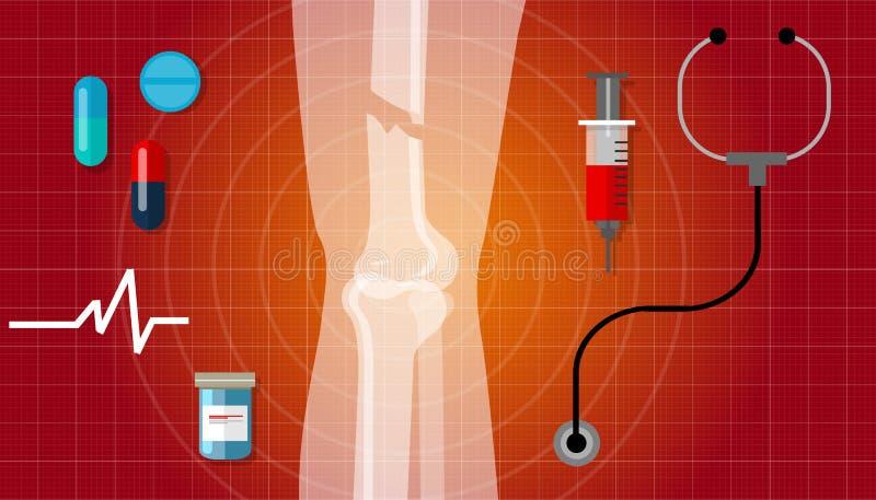Icône humaine d'illustration de traitement médical de rayon de l'anatomie X de jambes cassées de fracture illustration de vecteur