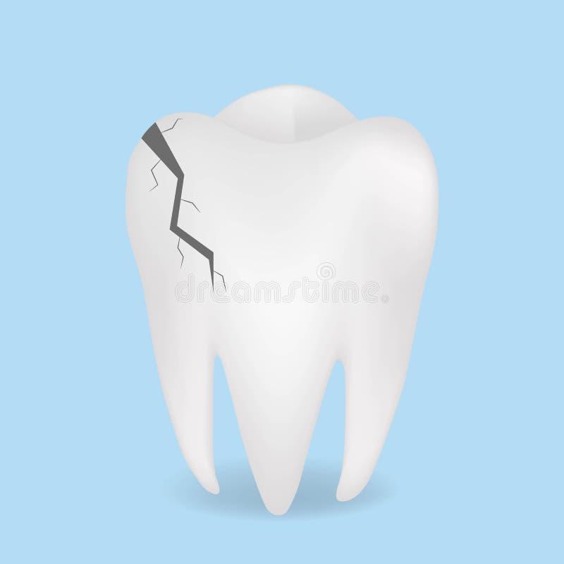 Icona realistica del dente, dentario incrinati e medicina, grafica vettoriale su un fondo blu illustrazione vettoriale