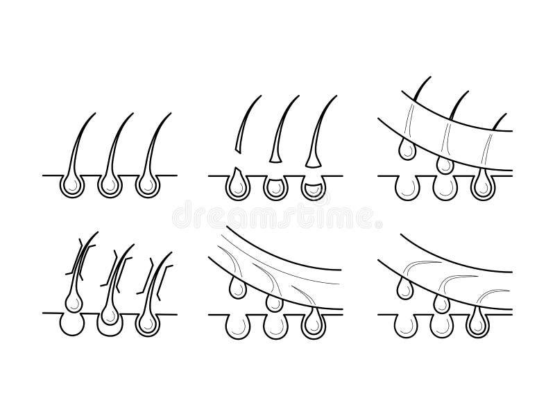 Icone dei metodi di depilazione illustrazione vettoriale
