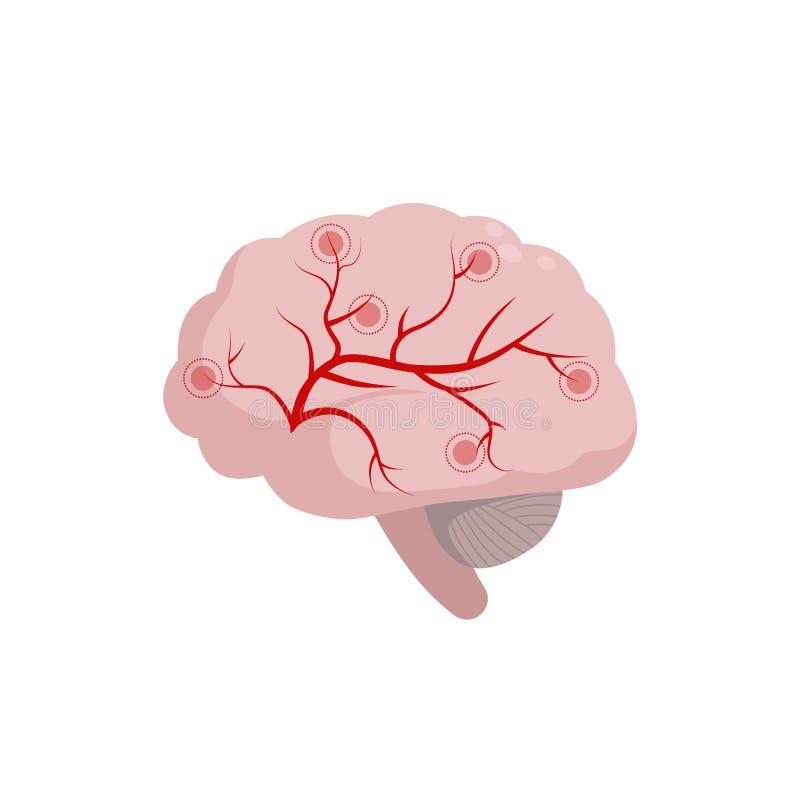 Icono del cerebro aislado en el fondo blanco, ejemplo médico en diseño plano Circulación y espasmo cerebrales de cerebral ilustración del vector