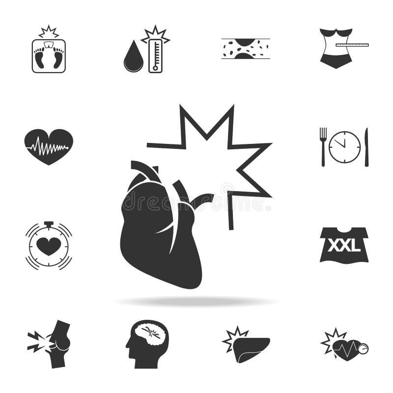 icono del infarto Sistema detallado de iconos de la obesidad Diseño gráfico superior Uno de los iconos de la colección para los s stock de ilustración