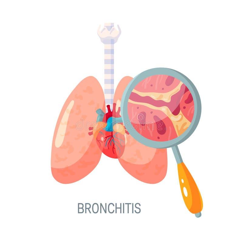 Icono del vector de la enfermedad de la bronquitis en estilo plano libre illustration