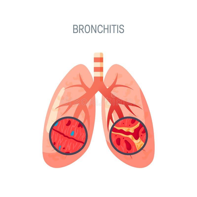 Icono del vector de la enfermedad de la bronquitis en estilo plano stock de ilustración