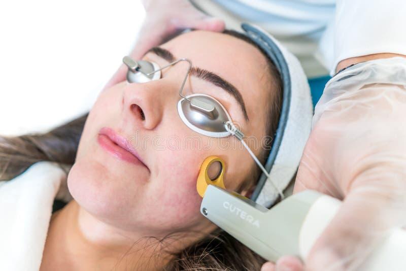 Ideia lateral do tratamento do laser para a vermelhidão da pele, para rejuvenescer a pele Usando o laser de Excel V por Cutera, c fotos de stock