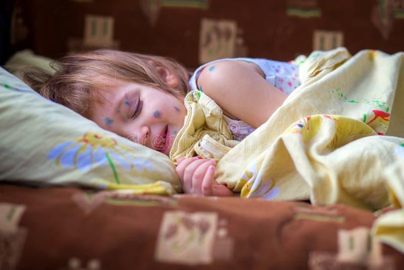Il bambino che ha varicella si trova in un letto ed ha un resto ciecamente fotografia stock libera da diritti