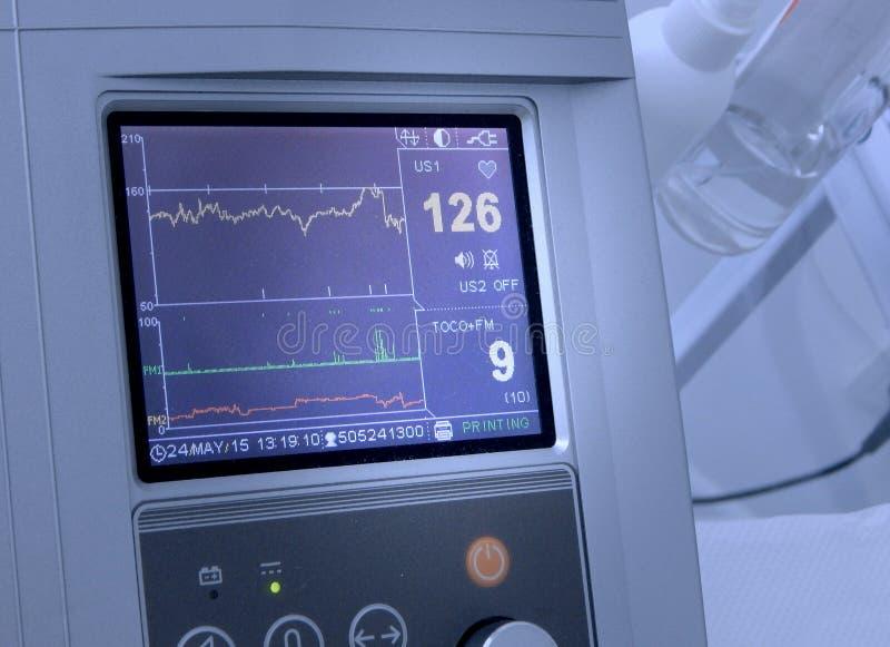 Il cardiografo mostra la frequenza cardiaca fetale fotografia stock