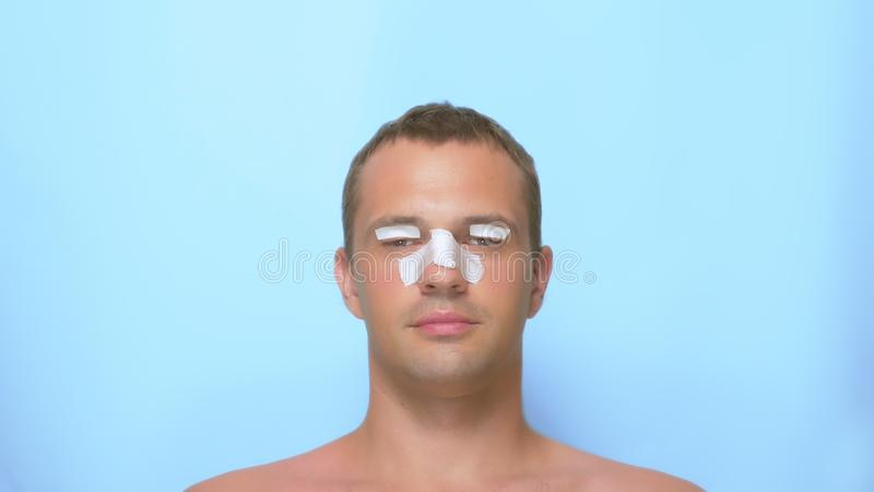 Il concetto di chirurgia plastica, di un uomo dopo una chirurgia plastica sul fronte, di una rinoplastica e della blefaroplastica fotografia stock libera da diritti