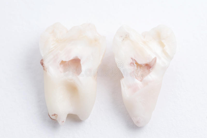 Il dente del giudizio estratto ha tagliato a metà su fondo bianco fotografia stock libera da diritti