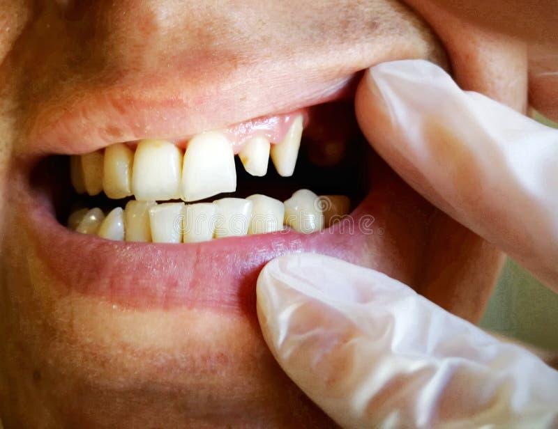 il dentista esamina un giovane ha affilato i denti per le corone o le impiallacciature ceramiche fotografie stock libere da diritti