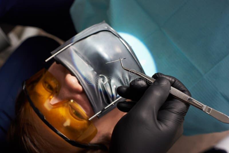 Il dentista in guanti neri tiene le pinzette sopra il paziente che per mezzo del cassone immagini stock