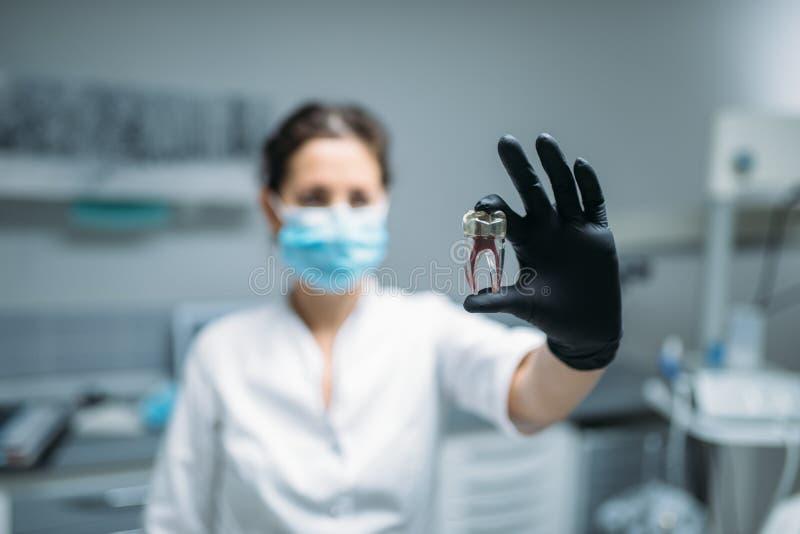 Il dentista mostra il perno del dente ed il modello, clinica dentaria fotografia stock libera da diritti
