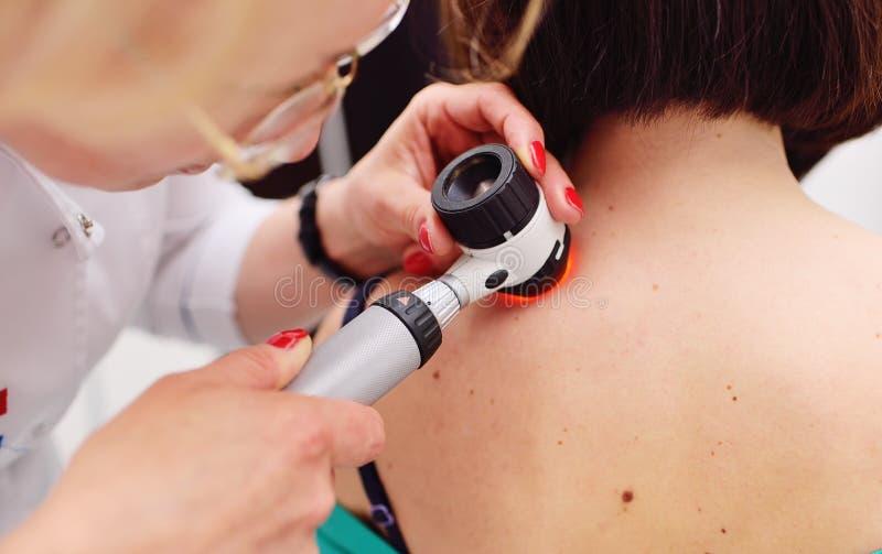 Il dermatologo esamina le talpe o l'acne del paziente con un dermatoscope fotografie stock