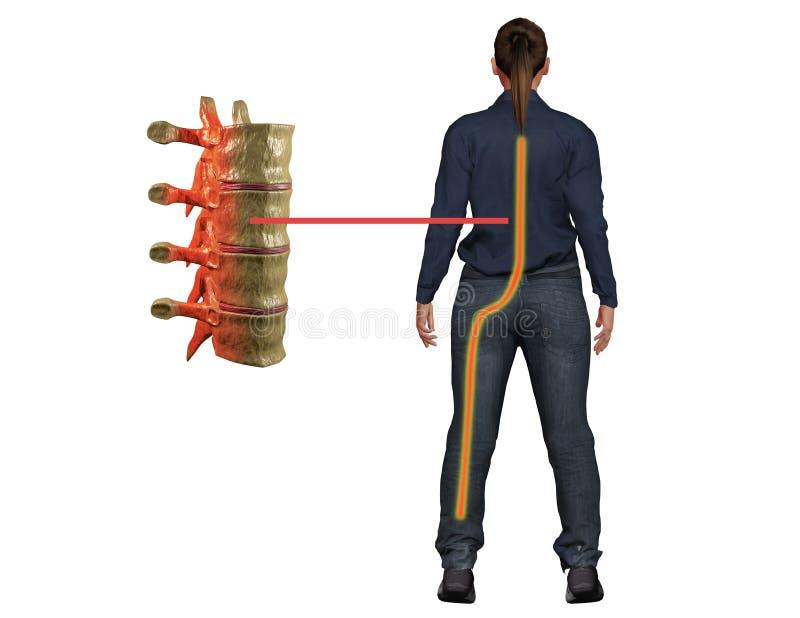 Il dolore della sciatica, un sintomo di perturbazione nel nervo della spina dorsale, raggiunge la gamba ed il disagio di cause illustrazione vettoriale