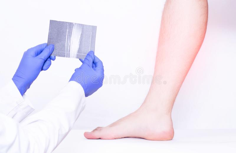 Il dottore Traumatologist tiene l'istantanea dei legamenti del vitello della gamba maschio, distorsione, medica, muscolo di RMI d fotografie stock libere da diritti